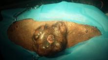 gruczolak sutka mastectomia
